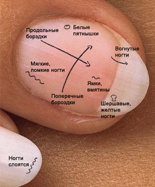 Здоровье ногти